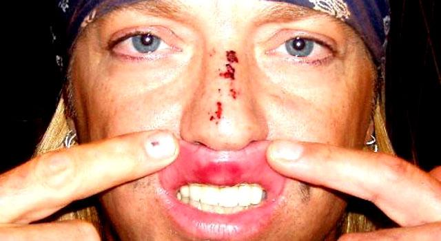061109 Bret Michaels injury