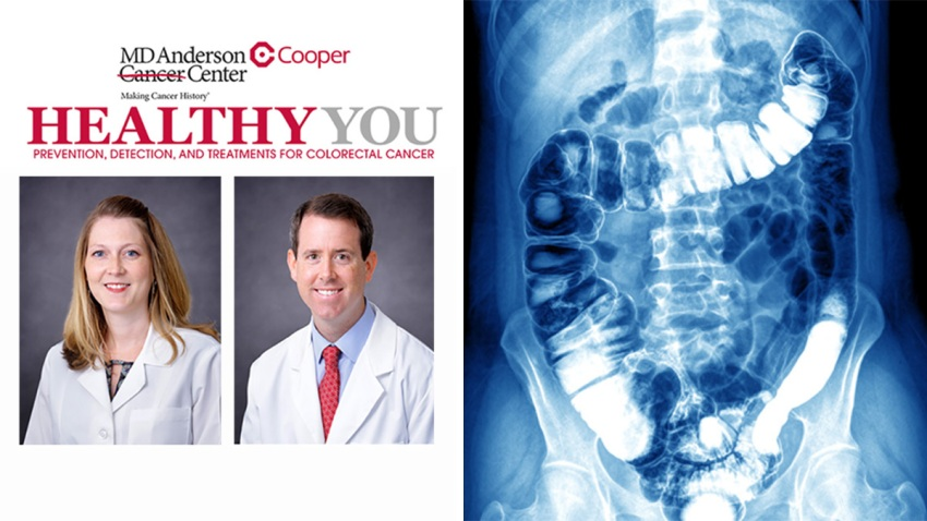 20180306 Cooper Webinar Colon Cancer
