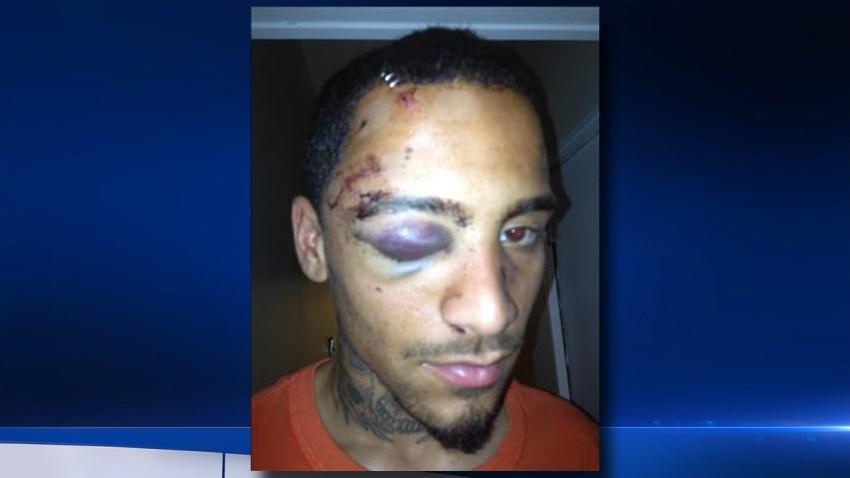 Najee Rivera beating injuries bg