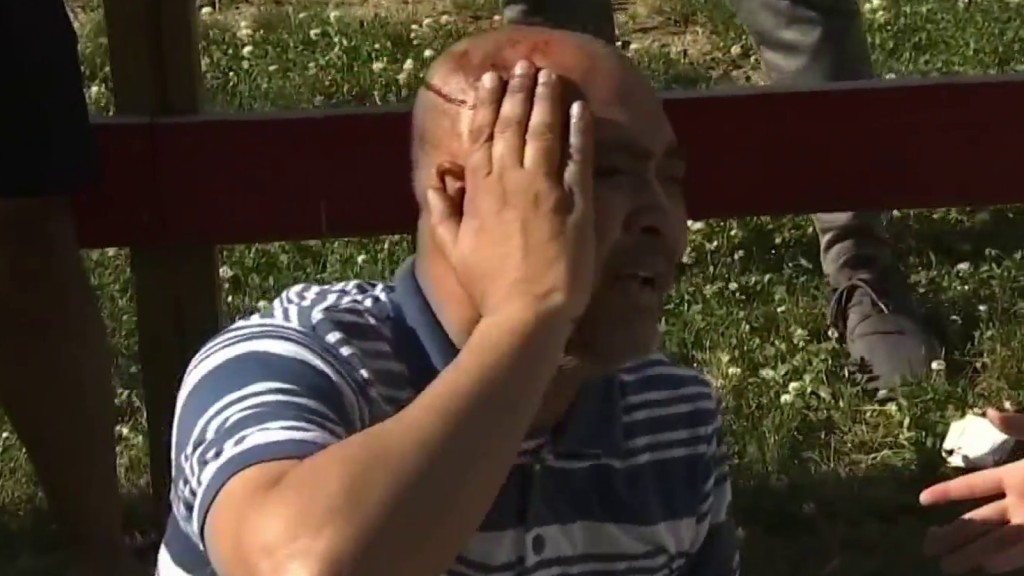 A man bleeding from the head in West Philadelphia