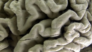 Another Alzheimer's Drug Shows Little Benefit for Patients