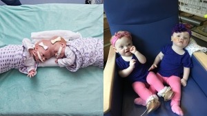 Formerly Conjoined Twins Doing Well After Surgery at CHOP