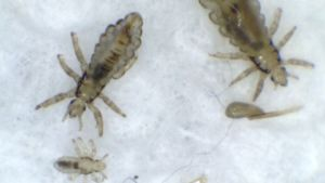 'Super Lice' on the Rise in Most States
