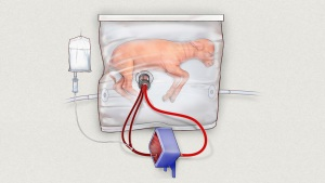 New Artificial Wombs Stimulates Mom for Preemies