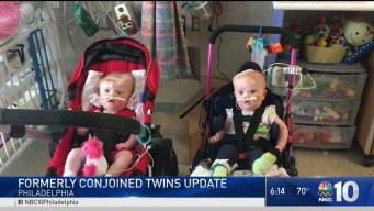 Formerly Conjoined Twins Recovering Months After Surgery