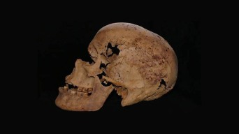 4,200-Year-Old Skeleton With Signs of Cancer Uncovered