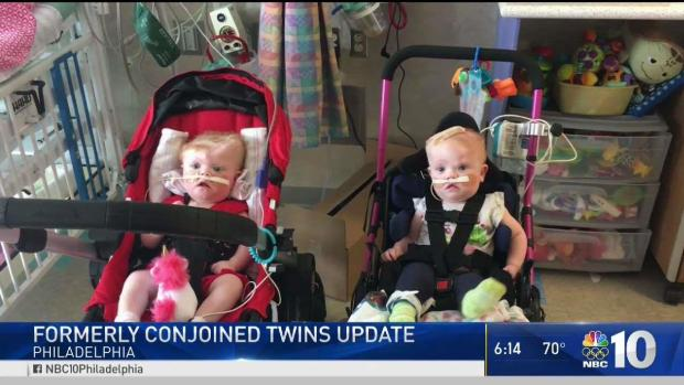 Formerly Conjoined Twins Doing Well Months After Successful