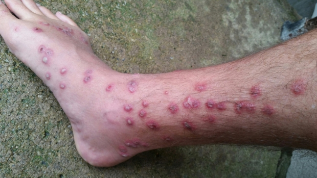 """A picture of Floyd Morton's leg and foot after he caught """"Swimmer's Itch.""""  Photo credit: Floyd Morton"""