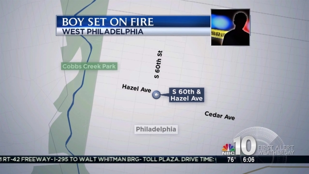 [PHI] 11-Year-Old Boy Set on Fire