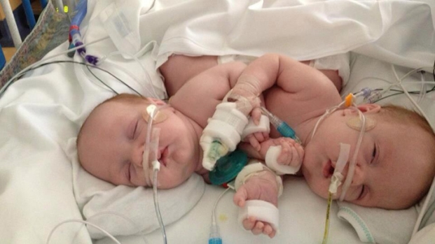 [NATL-DFW] Conjoined Twins Undergo Separation Surgery