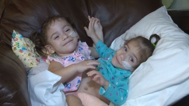 Conjoined Twin Girls Separated by 17 Hour Surgery