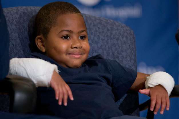 Boy With Double Hand-Transplant Leaves CHOP