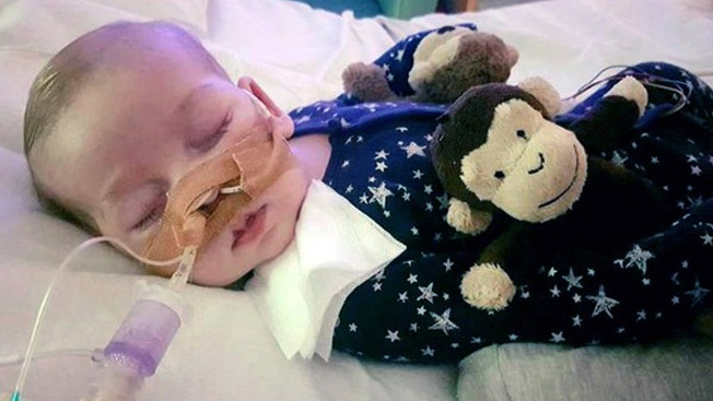 UK's Foreign Secretary Backs Doctors in Baby Charlie Case