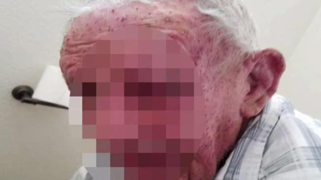 77-Year-Old Man Stung By 'a Cloud' of Africanized Bees Dies