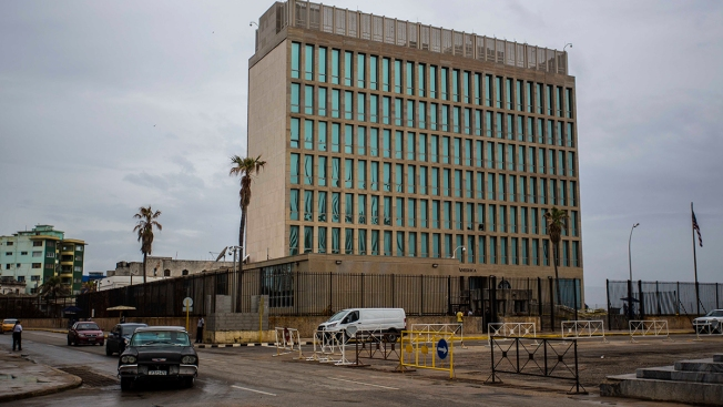 Doctors Find Differences in Brains of US Diplomats Who Alleged Mystery Attacks in Cuba