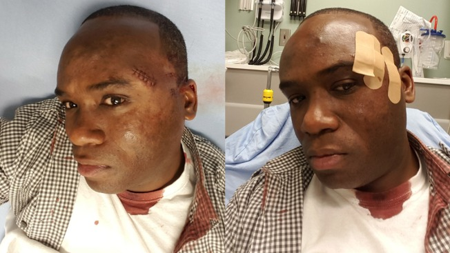 Philadelphia Police Officers Sue LeSean McCoy Over Off-Duty Brawl at Philly Club