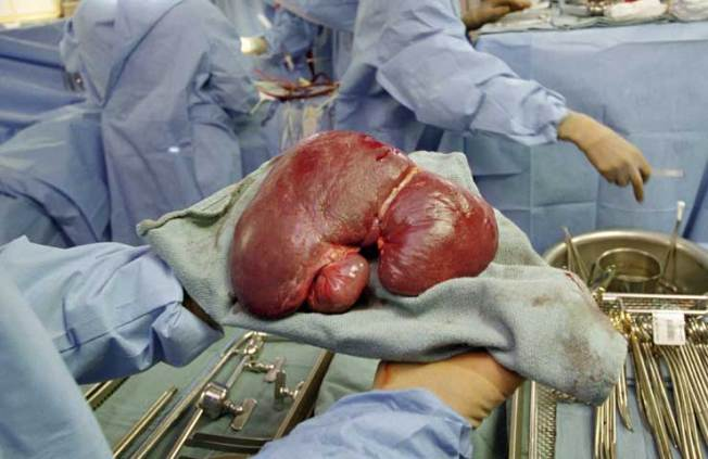 Liver Cancer Deaths on the Rise