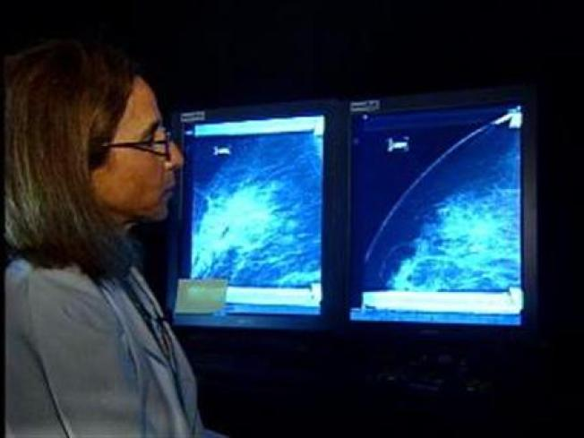 Hormones Double Risk of Breast Cancer: Study