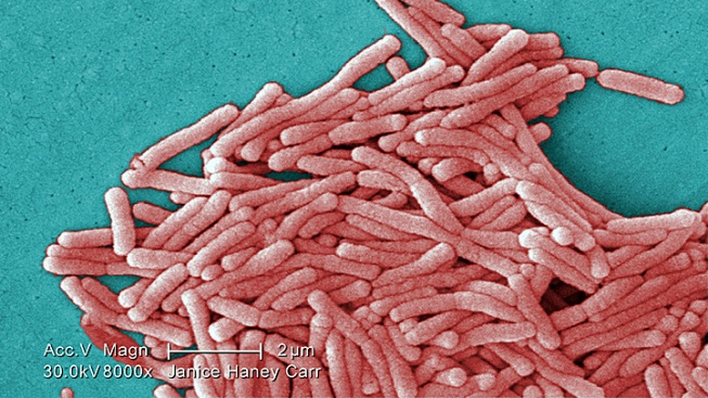 CDC Didn't Check Legionnaires Records: Paper