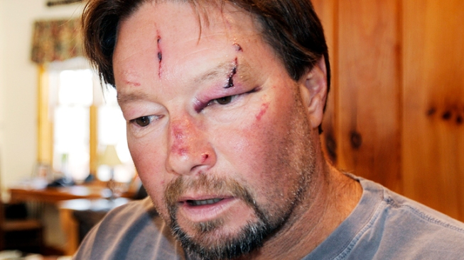 Man Attacked by Rabid Bobcat in His Garage
