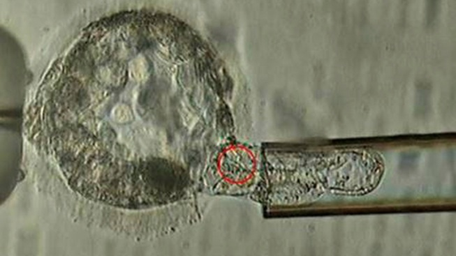 Ethicist Foresees Choosing Your Baby From Dozens of Embryos
